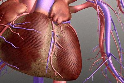 Nέα δεδομένα για τους ασθενείς που πάσχουν από κολπική μαρμαρυγή
