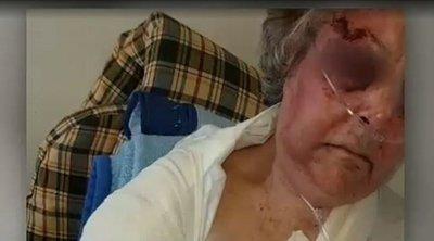 Συγκλονίζει η ηλικιωμένη που τη βασάνισαν και τη λήστεψαν μέσα στο σπίτι της: Είπα ότι εδώ τελείωσε η ζωή μου