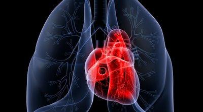 Η ρύπανση του αέρα, ιδίως από το όζον, επιδεινώνει το εμφύσημα των πνευμόνων όσο ένα πακέτο τσιγάρο τη μέρα
