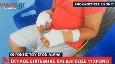 Σκύλος επιτέθηκε και δάγκωσε 11χρονο στην Εύβοια - Πώς περιγράφουν οι γονείς το περιστατικό