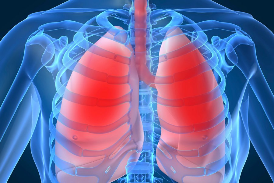 Ερευνα: Αυξημένος ο κίνδυνος καρκίνου των πνευμόνων για τους ασθενείς με ΧΑΠ που ποτέ δεν κάπνισαν