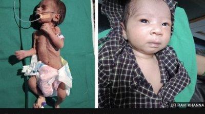 Ινδία: Το νεογέννητο κοριτσάκι που είχε βρεθεί θαμμένο ζωντανό μέσα σε αυτοσχέδιο τάφο έχει αναρρώσει πλήρως