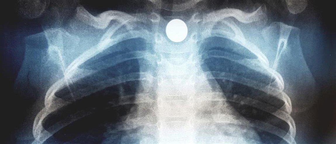 «Συναγερμός» για παιδί που κατάπιε μαγνητάκι ψυγείου - Το αντικείμενο «σφηνώθηκε» στον οισοφάγο