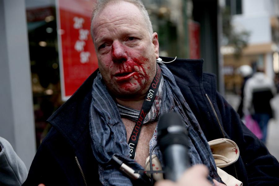Πέτσας για την επίθεση σε δημοσιογράφο της DW: Είμαστε απέναντι στις δυνάμεις της βίας και των άκρων