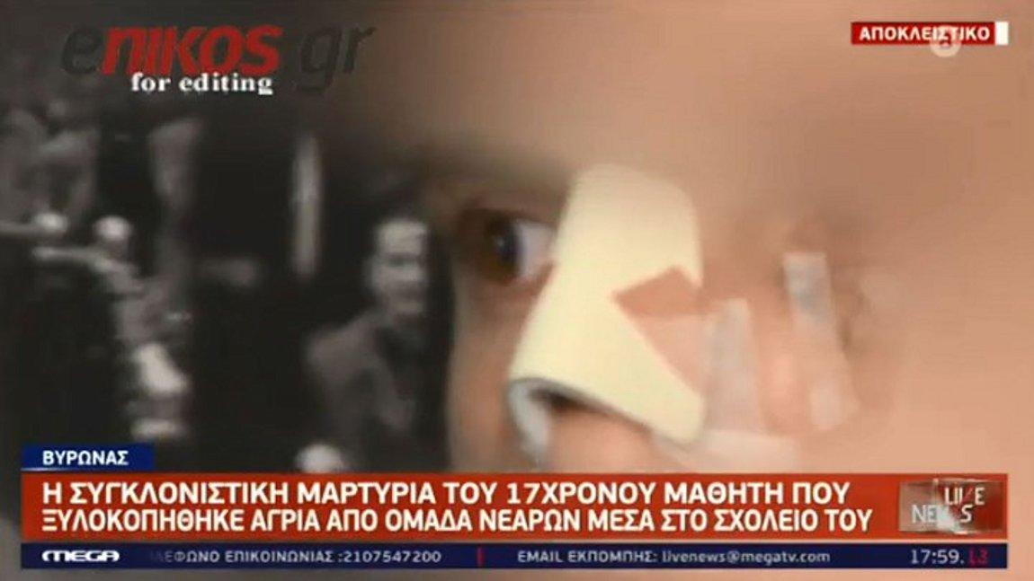 Βύρωνας: Η συγκλονιστική μαρτυρία του 17χρονου μαθητή που έπεσε θύμα ξυλοδαρμού - ΒΙΝΤΕΟ