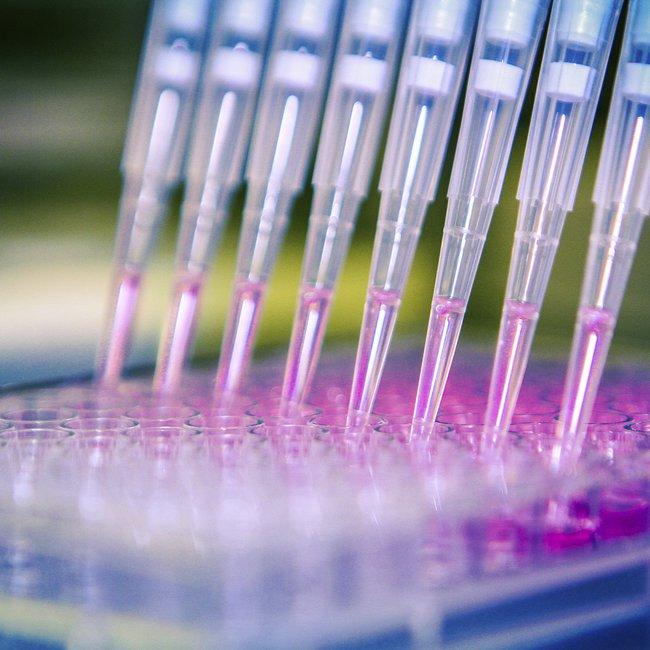 Τουρκία: Το πανεπιστήμιο της Άγκυρας ανακοίνωσε πως έκανε το πρώτο βήμα για την παρασκευή εμβολίου κατά του κορωνοϊού