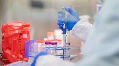 Βατόπουλος για κορωνοϊό: Από τις πρώτες 4 ημέρες αναπτύσσουμε αντισώματα στον ιό, όμως δεν ξέρουμε προς το παρόν αν μας προστατεύουν και για πόσο