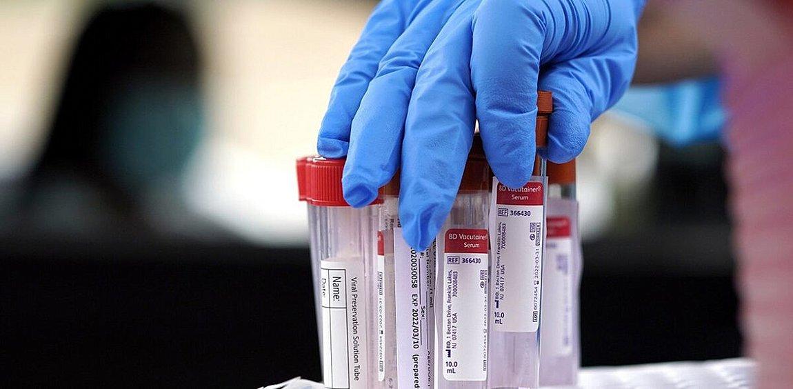 Φόβοι για τοπικό lockdown στην Καβάλα - Εκκληση του Ιατρικού Συλλόγου για τεστ και μέτρα μετά την αύξηση κρουσμάτων