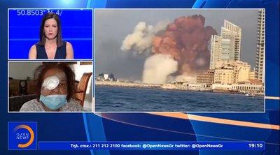 Εκρήξεις στη Βηρυτό: Συγκλονίζει Ελληνίδα που έχασε το μάτι της - «Πληγώθηκα βαριά» - ΒΙΝΤΕΟ