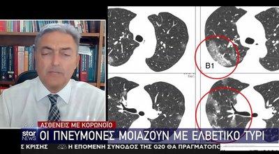 Κορωνοϊός: Πώς μοιάζουν οι πνεύμονες των ασθενών - Δείτε την αξονική