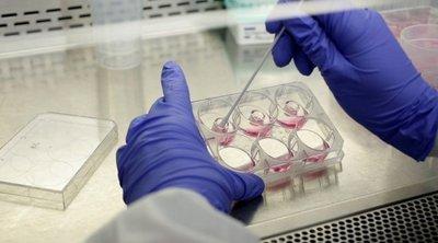 Κορωνοϊός: Τι δείχνει έρευνα για τις ομάδες αίματος - Ποιοι έχουν μικρότερη πιθανότητα να μολυνθούν