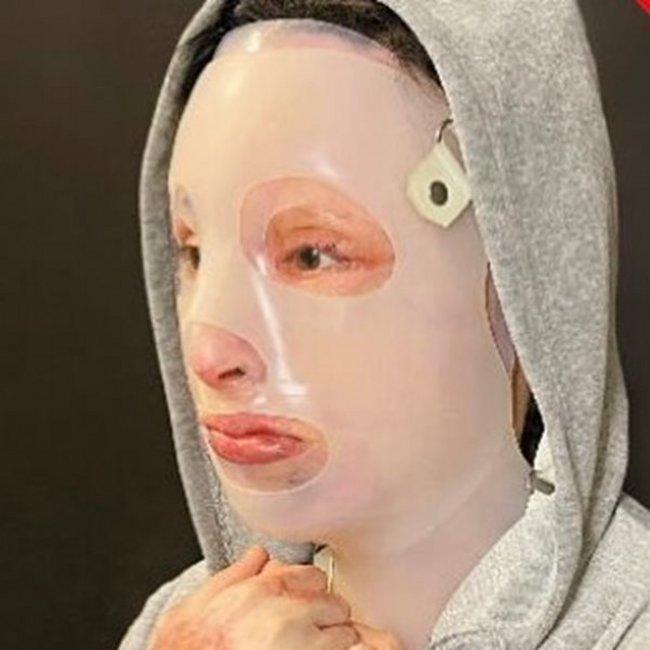 Επίθεση με βιτριόλι: Η νέα φωτογραφία της Ιωάννας μέσα από το νοσοκομείο – Υποβλήθηκε στο 8ο χειρουργείο - ΒΙΝΤΕΟ