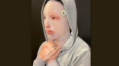 Το συγκλονιστικό μήνυμα της Ιωάννας για την επίθεση με καυστικό υγρό στη Μονή Πετράκη