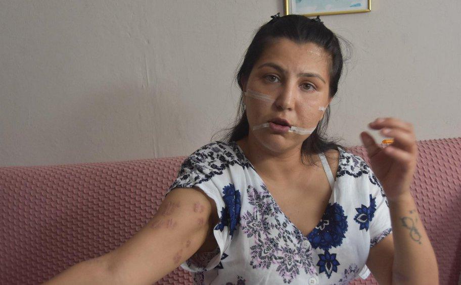 Σοκ στην Τουρκία: Μαχαίρωσε τη γυναίκα του 104 φορές